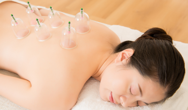 What You Should Know about Cupping